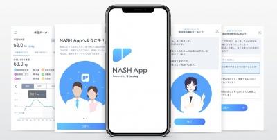 NASH(非アルコール性脂肪肝炎)の治療用アプリの画面イメージ(資料:CureApp)