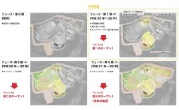 3段階に分けて整備し、全体のオープンは2021年を予定(資料:氷見市)