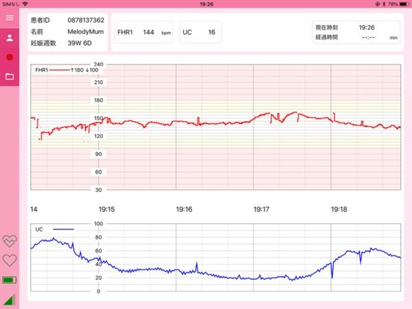 iCTGで測定したデータのイメージ