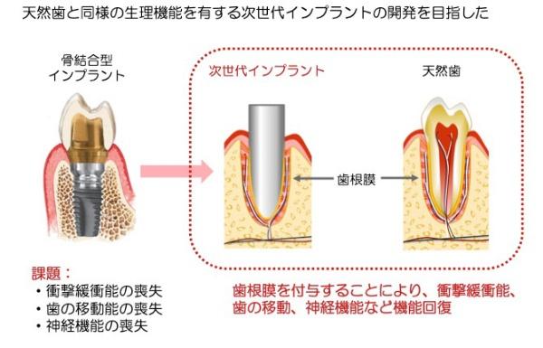 図1●歯根膜を有する次世代インプラントの開発(辻氏による、図2~4とも)