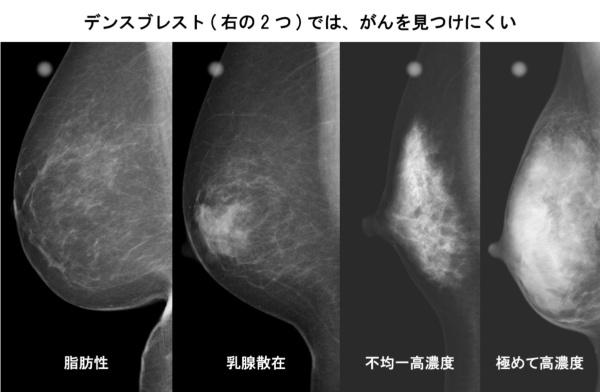 「不均一高濃度」と「極めて高濃度」がデンスブレストに該当する。がんも白く写るので、目視では判別が難しい(図:井上氏提供の画像を基にBeyond Healthが作成)