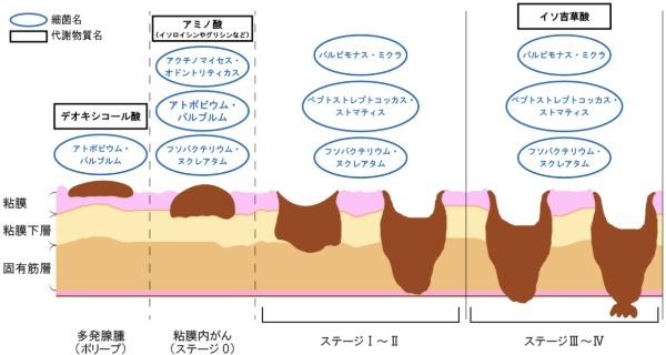 大腸がんの進行に伴う腸内環境の変動