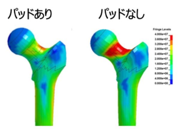 カネカと芝浦工業大学による衝撃吸収パッドの研究データの可視化図。パッドを入れることで、骨にかかる衝撃(赤色で示されている)が激減する(画像提供:エナジーフロント)