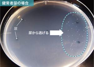 がん患者の尿のにおいに線虫が引き寄せられる。この原理を応用したのがN-NOSEである(出所:HIROTSUバイオサイエンス)