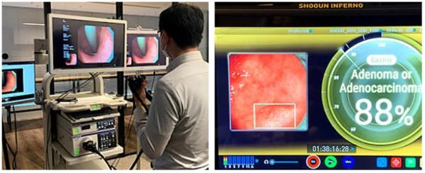 AIメディカルサービスと共同で、内視鏡検査映像を伝送しAI画像診断補助を行う実証実験を実施した(出所:ソフトバンク)