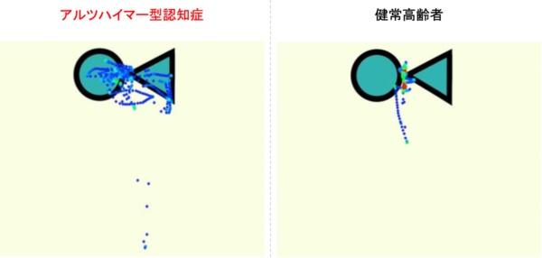 図3●左は視点が拡散、右はポイントを注視(出所:武田氏)