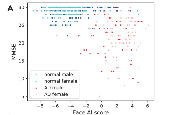 AIが算出したスコアとMMSEとの関係。AI算出スコアの高い方が認知機能が低い