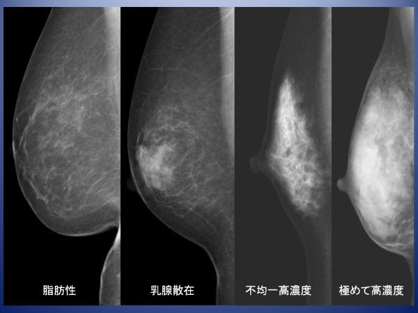 乳腺が白く映るデンスブレストが多いことが問題