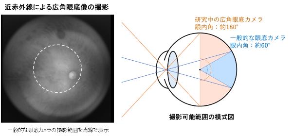 広範囲180度の眼底撮影を可能にする(出所:プレスリリース)