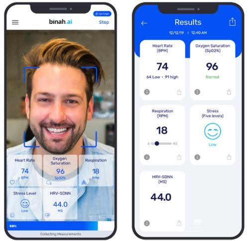 スマートフォンのカメラを活用し各数値を計測する(左)、結果は1分以内に得ることができる(右、写真はいずれもBinah.ai提供)