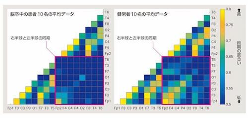 (図1)安静時の脳波の同期