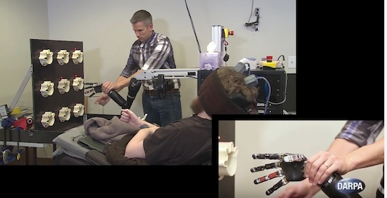 (写真2)ピッツバーグ大学による脳内チップ埋め込み実験の様子(DARPAの公開映像より)