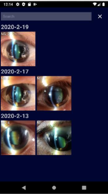 SECのアプリに保管された眼のデータ(出所:OUI Inc.)