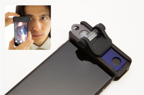 SECはスマホ装着型の医療機器。装着するだけで眼科検査に必要なスリット光を当て、眼の中を拡大することができる(出所:OUI Inc.)